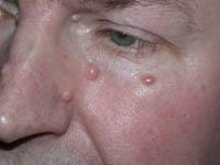Фибромы до лечения лазером