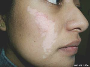 Vitiligo before treatment