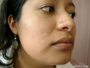 Vitiligo after 4 treatment