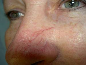 Facial telangiectasia before jpg, 9 Kb