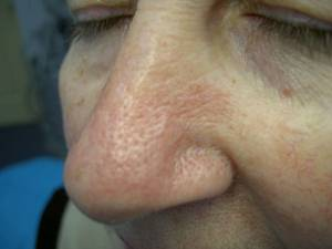 Facial telangiectasia after jpg, 8 Kb